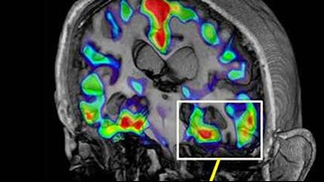 Researchers test vaccine they hope could stem Alzheimer's