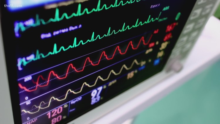 AFib is the most common type of irregular heartbeat