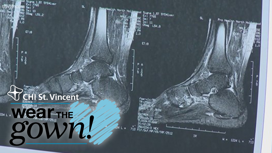 Preventing feet injuries | Wear the Gown