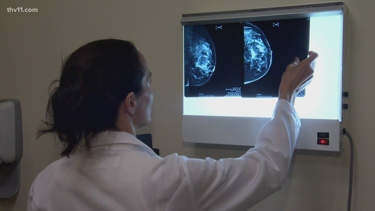 'Earth angels' at New Outlook Center help with cancer navigation