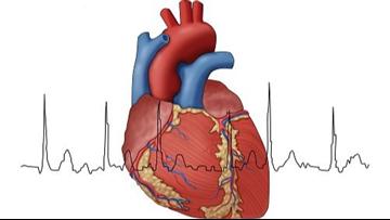 Risk factors for developing Atrial Fibrillation (AFib)