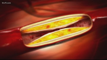 The dangers of Peripheral Artery Disease and how it can be caught early | Wear the Gown