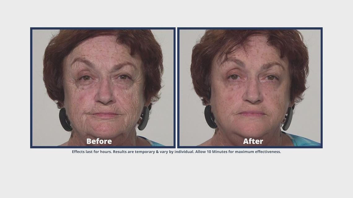 Watch your skin transform in just 10 minutes   Plexaderm